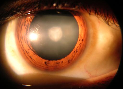 512px-Cataract_in_human_eye