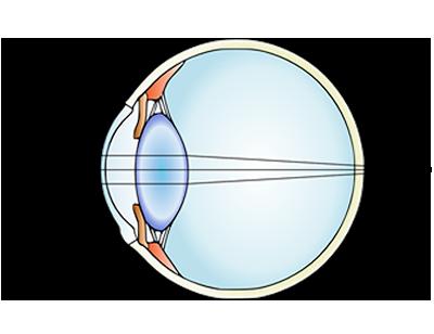 Ipermetropia1