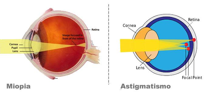 Miopia-e-astigmatismo-varese
