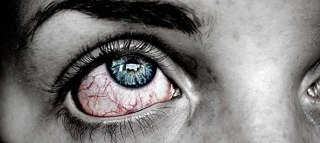 Il Glaucoma: una delle principali cause di cecità al mondo