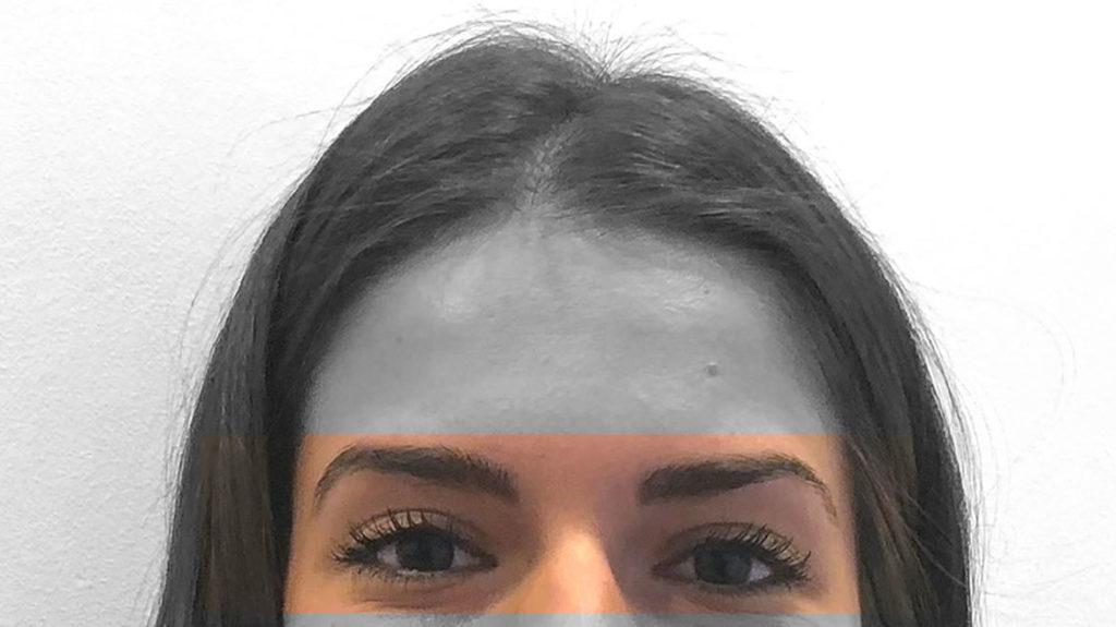 Intervento laser agli occhi: un percorso fantastico!